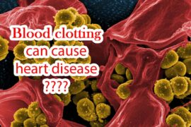 Blood clotting can cause serious health problems, such as heart disease or thrombus stroke.